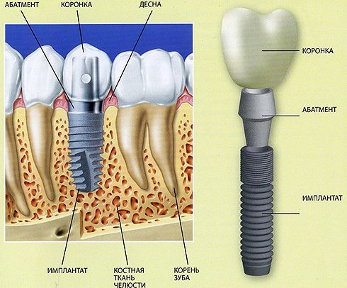 What is-abutment