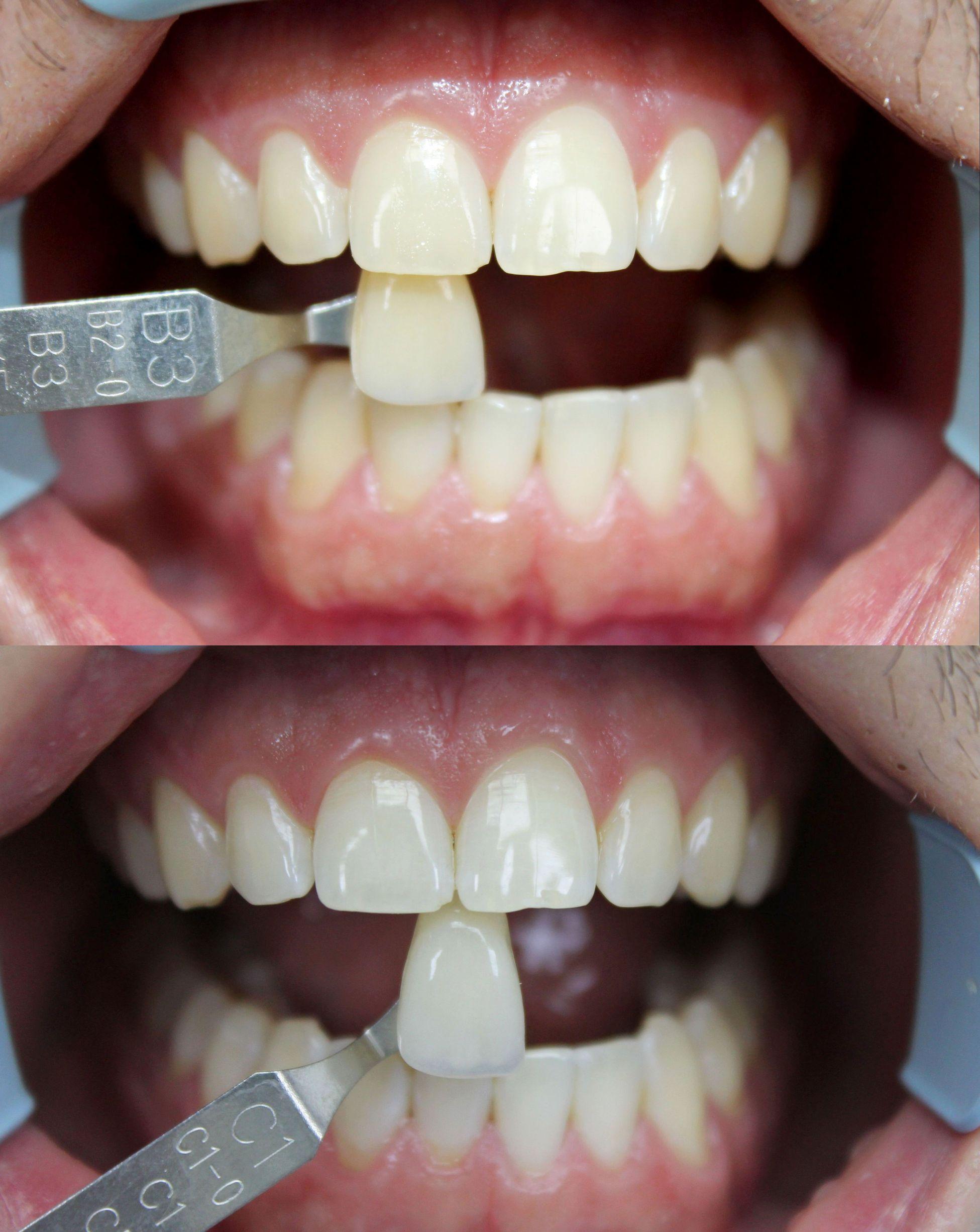 лазерное отбеливание зубов в омске