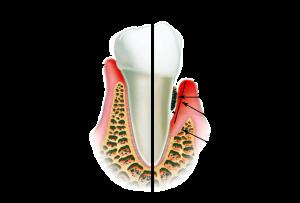 gipertroficheskij-gingivit3
