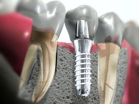 implant0
