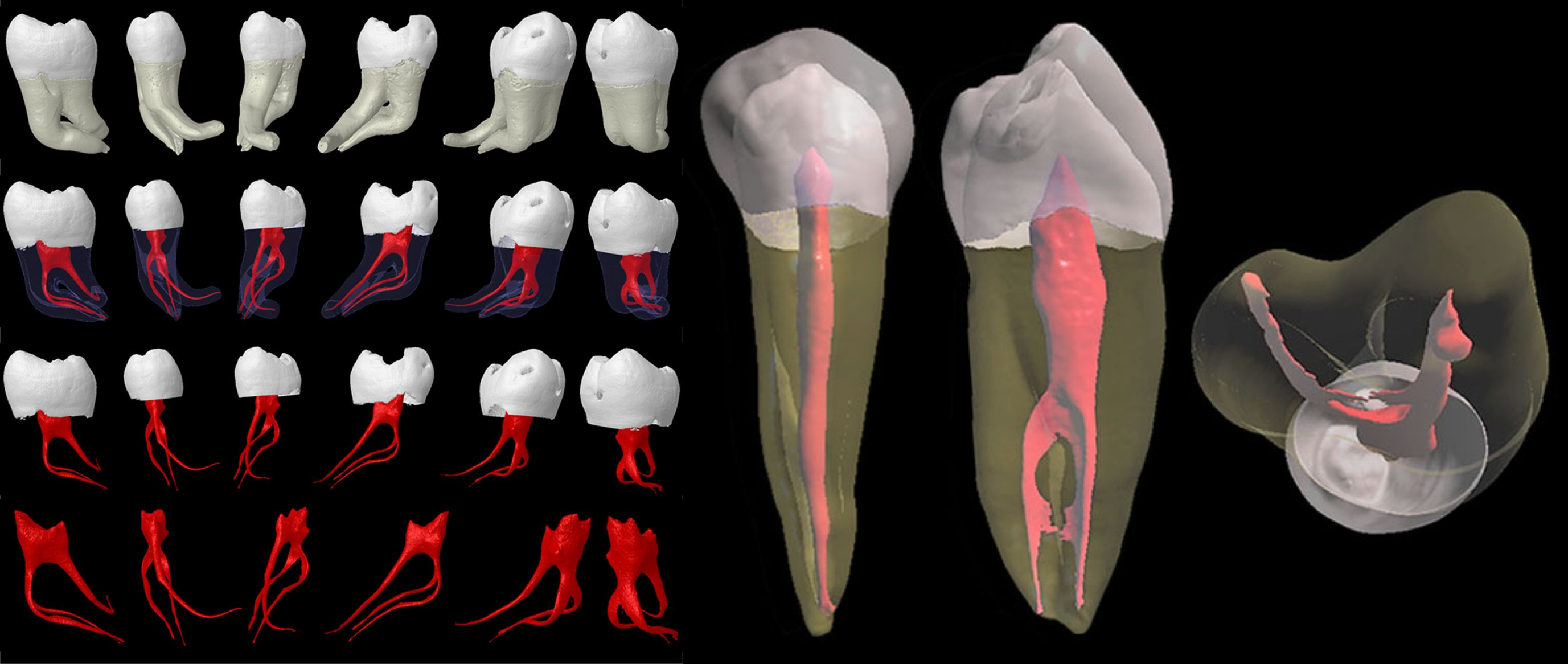 Types of tooth root system