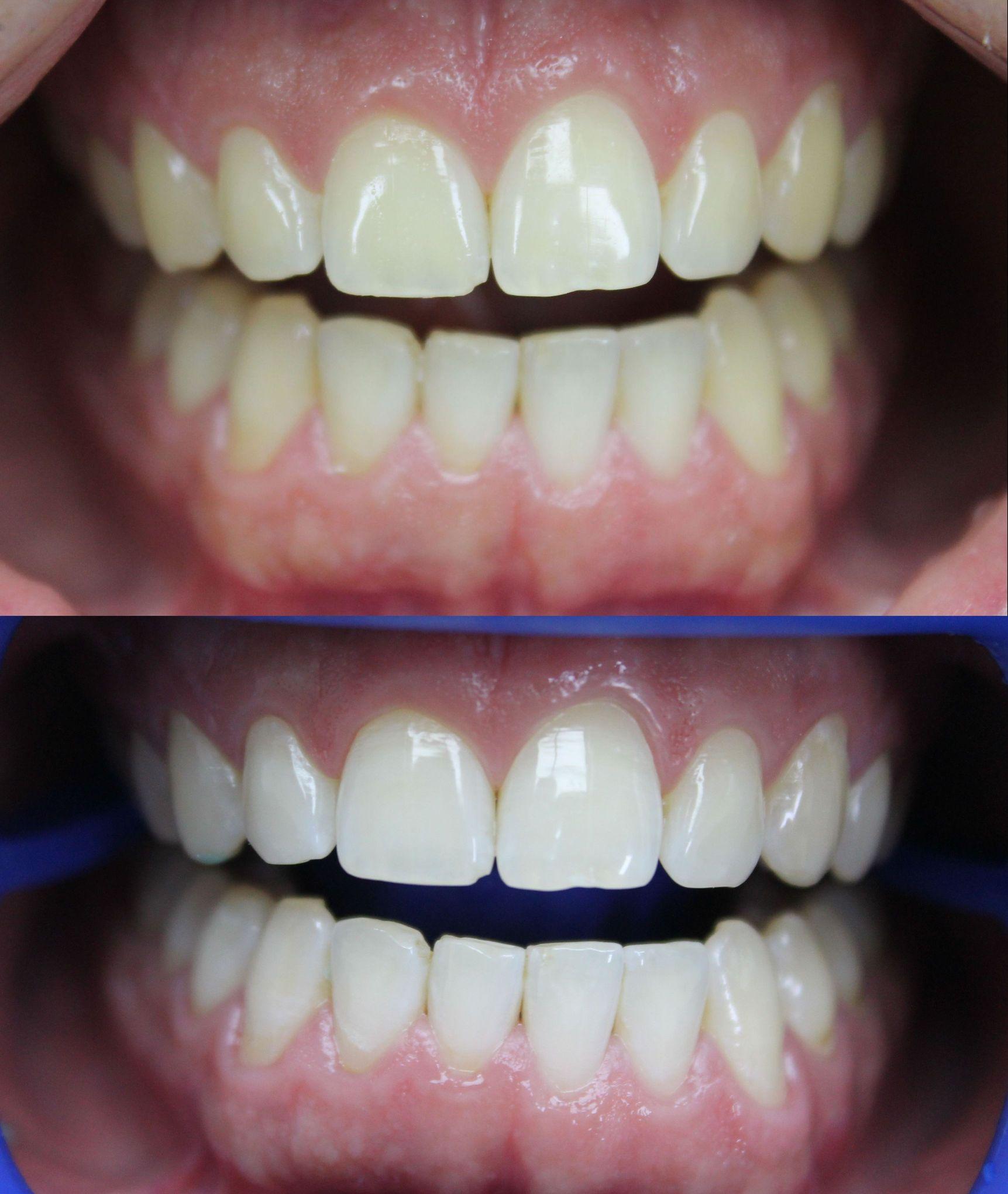 лазерное отбеливание зубов москва отзывы