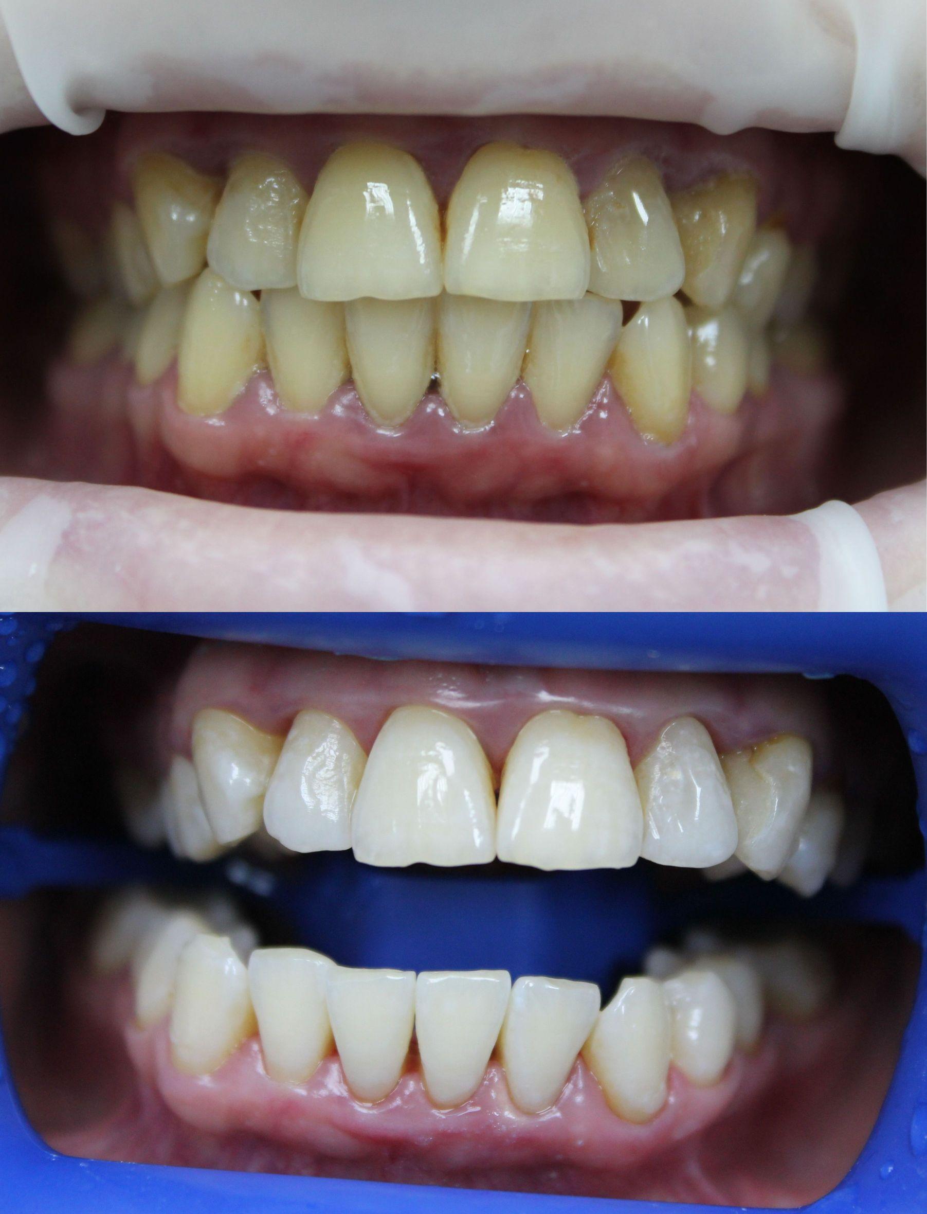 Наркоз - Сеть стоматологических клиник