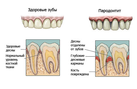 periodontitis-best-treatment-in-Kiev